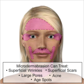 NYC-Anti-aging-Clinic-Microdermabrasion