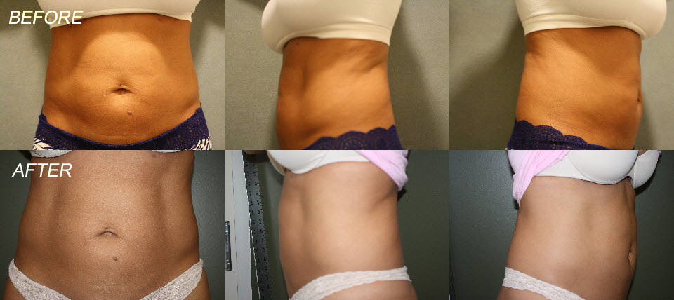 Weight loss plan in india picture 2