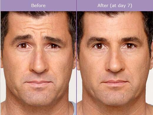 BOTOX® / Restylane   NYC Rejuvenation Clinic
