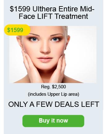 Ulthera-face